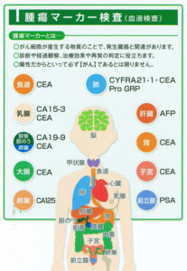 腫瘍(しゅよう)マーカーとは、がん細胞が産生する物質のこと。診断や経緯観察、治療効果や再発の判定に役立つとのこと